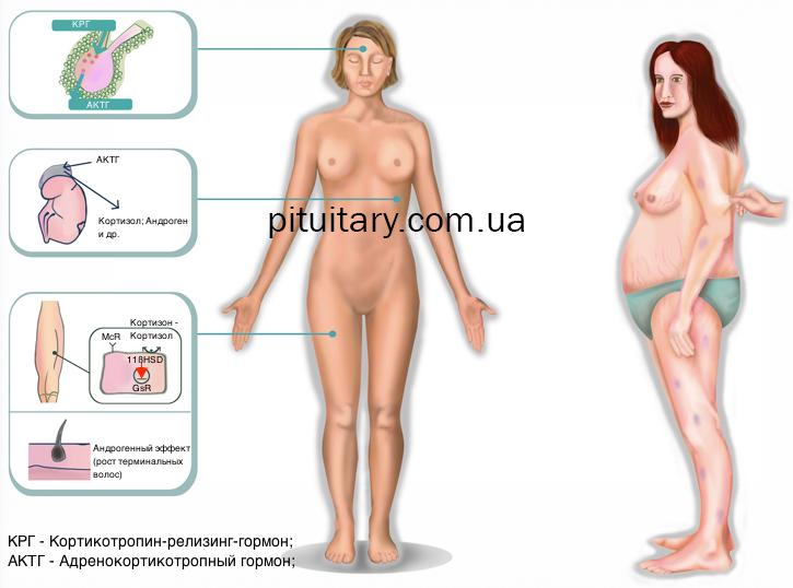 cushings_disease3