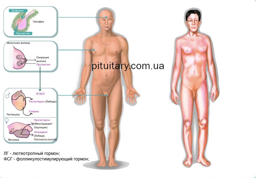 hyperprolactinemia2